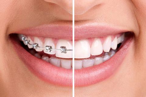 ортодонт, стоматолог-ортодонт, исправление зубов, выравнивание зубов, брекеты