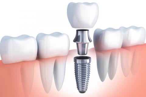 стоматолог-хирург, стоматолог-хирург в Чебоксарах, импланты, импланты Чебоксары