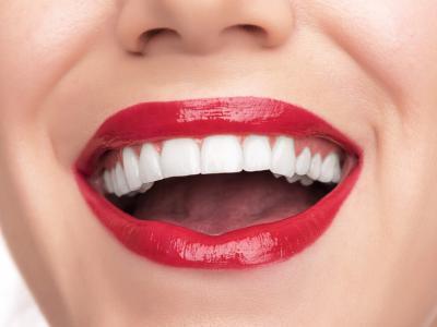 виниры, установка виниров в Чебоксарах, винир, стоматолог-ортопед