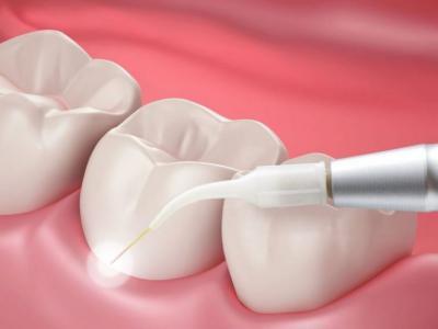 стоматолог-хирург, стоматолог-хирург в Чебоксарах, удаление зуба
