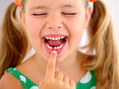 детский стоматолог, детский стоматолог Чебоксары, лечение зубов детям, удаление зубов детям, удалить зуб ребёнку Чебоксары